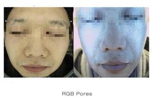 Skin Deep Imager 3