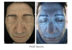 Skin Deep Imager 1