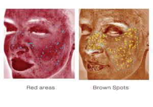 Skin Deep Imager 2