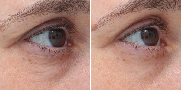 Skin Tightening - Harmony med spa - Before and After
