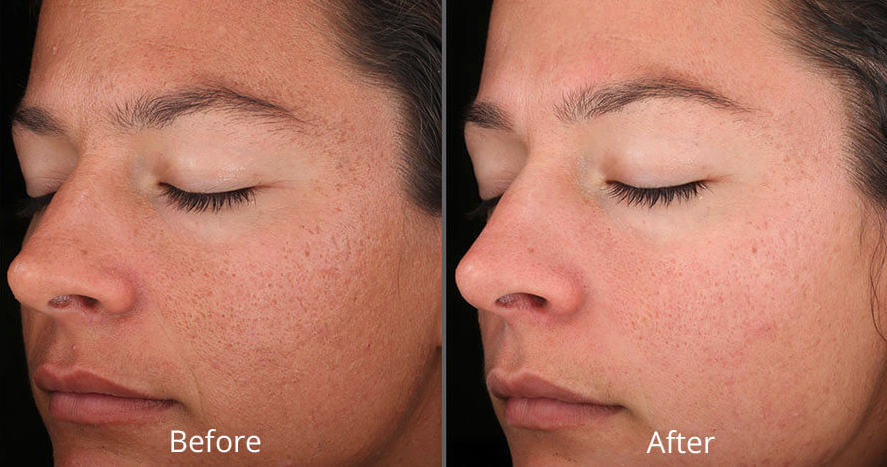 Chemical peel - Before and After