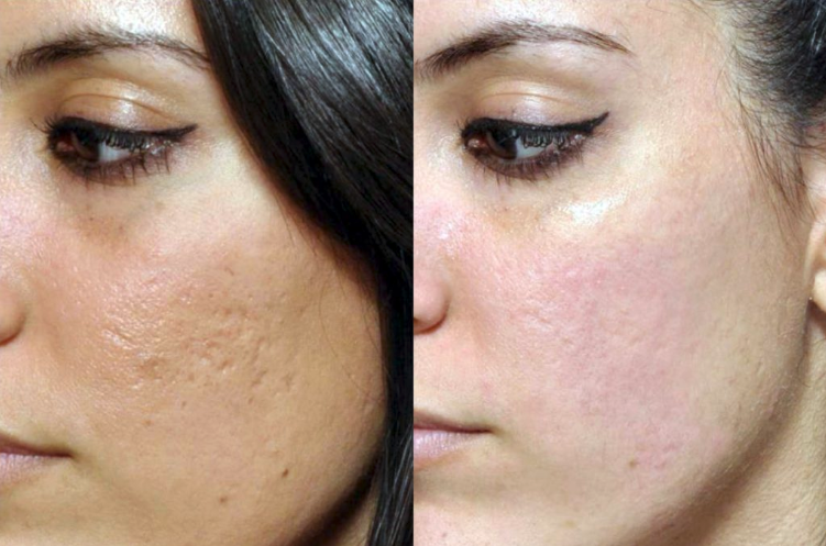 Microneedling - Before and After