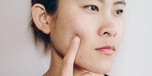 acne scar removal oshawa