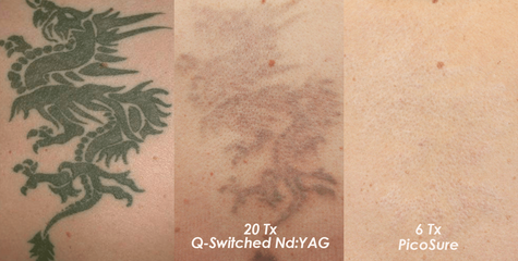 laser tattoo removal comparison pictures