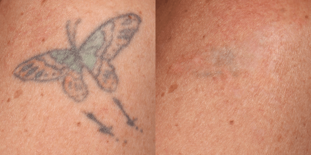 laser tattoo removal picture