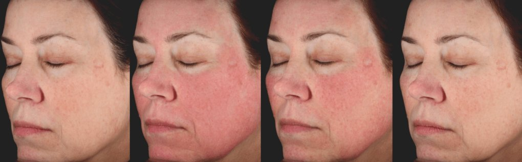 PicoSure - Before and After