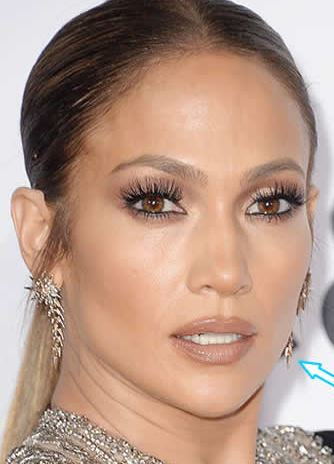 jlo botox after