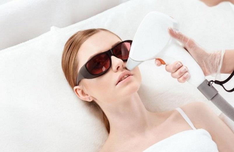 laser hair removal oshawa