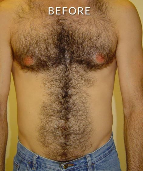 laser hair removal chest 1