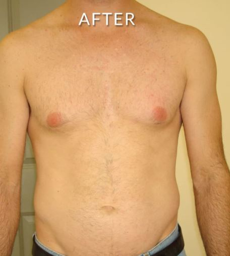 laser hair removal chest 2