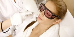 laser scar removal oshawa