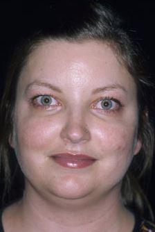 Rosacea Treatment 2