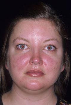 Rosacea Treatment 1