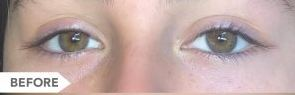 eyelash growth serum before 1