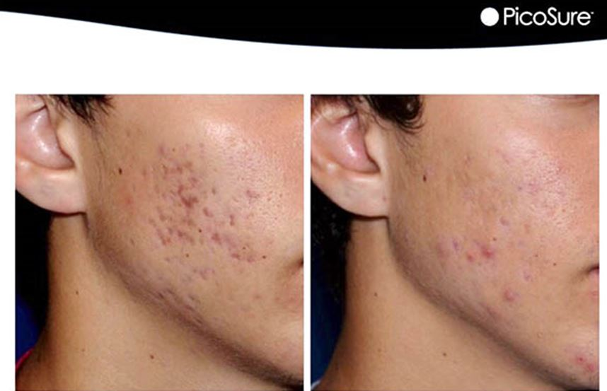 acne laser treatment oshawa