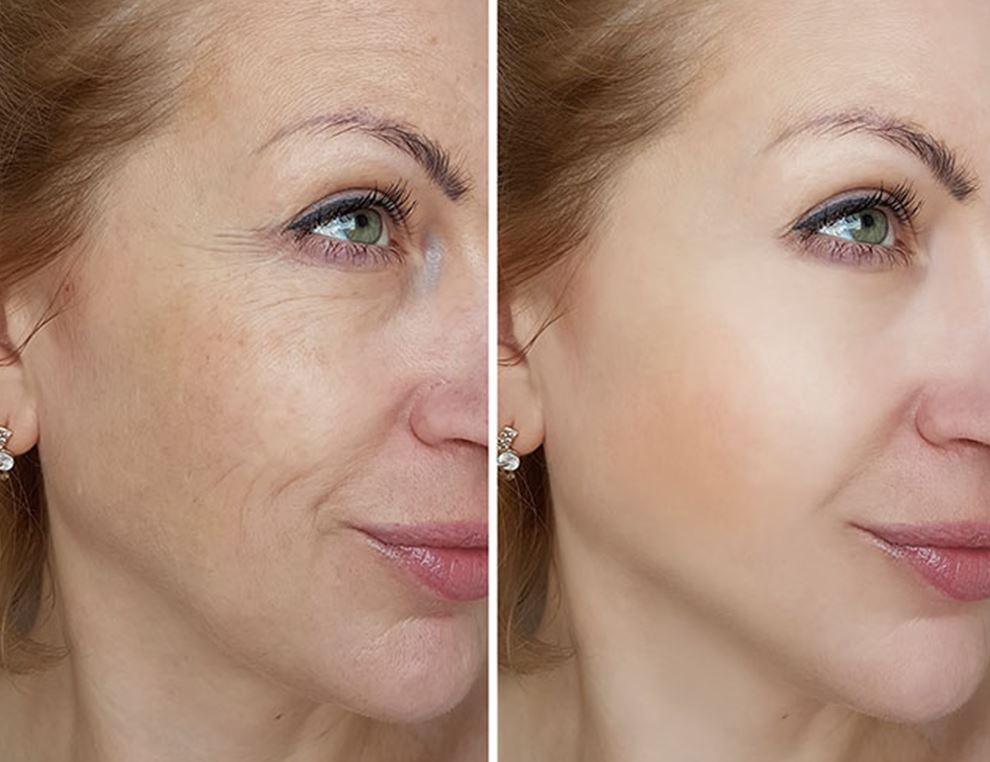 laser skin resurfacing oshawa