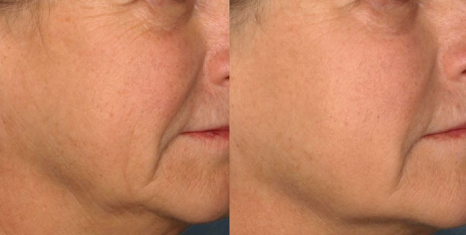 wrinkle treatment oshawa