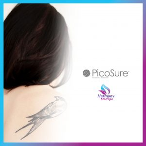 6 Benefits of PicoSure for Tattoo Removal 1