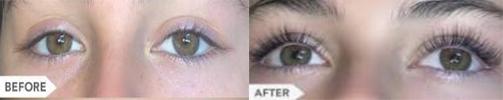 Eyelash Growth Serum Treatment Oshawa