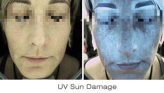 Skin Deep Imager