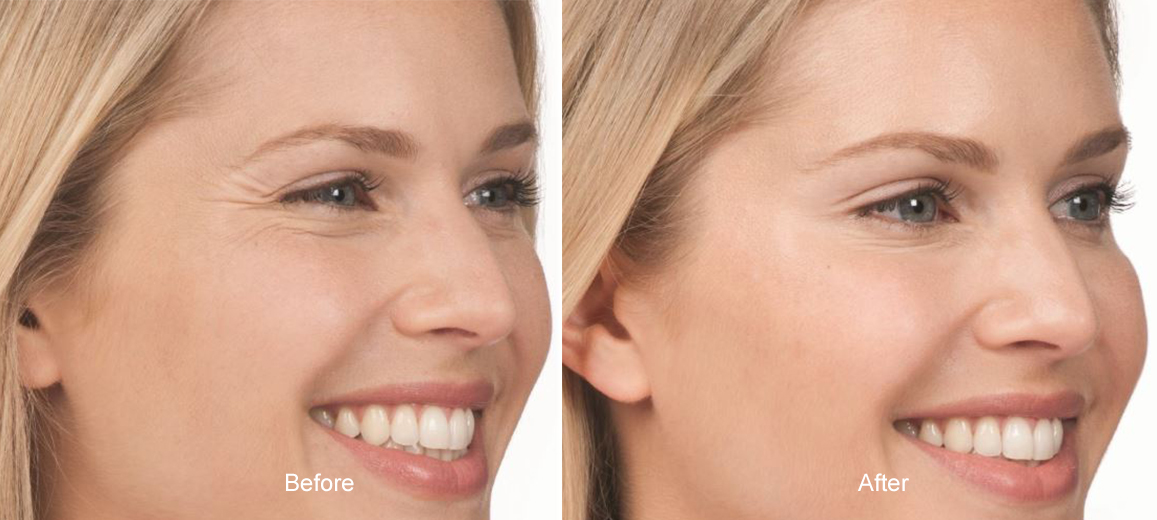 jlo botox after before
