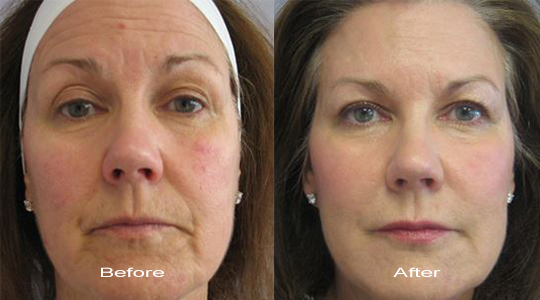 No more wrinkle Before and After