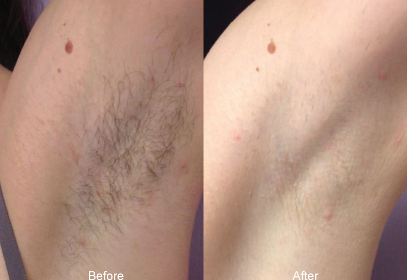 laser hair removal before after