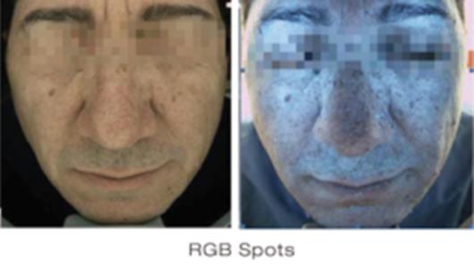 RGB Spots - Skin Deeper Image