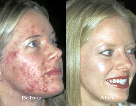 Acne Laser Treatment Before and After