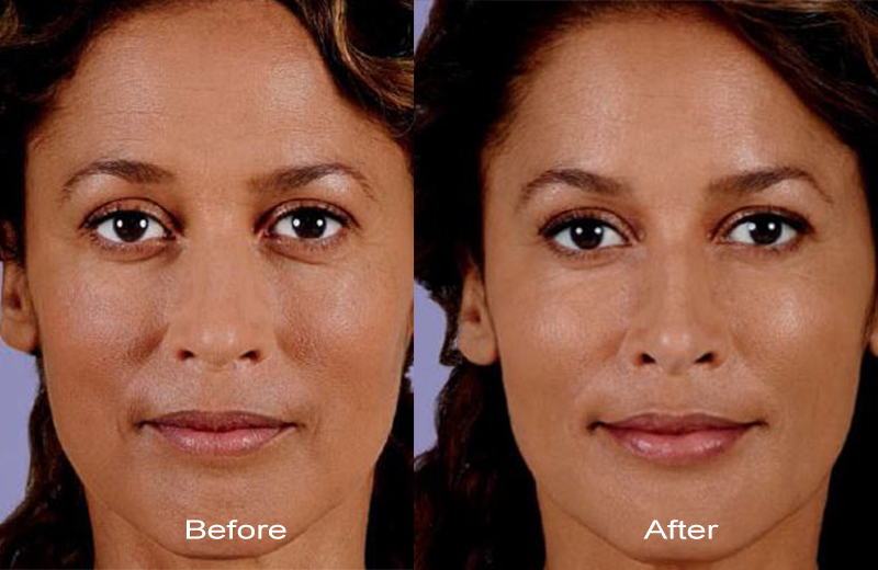 juvederm fillers before after