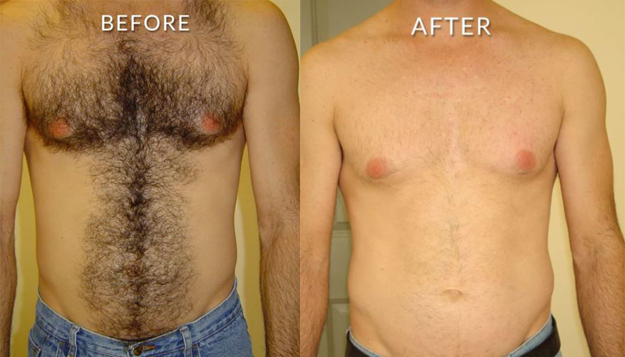 laser hair removal chest before after