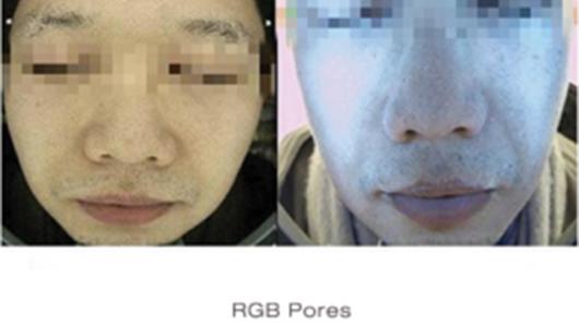 RGB Pores - Skin Deeper Image