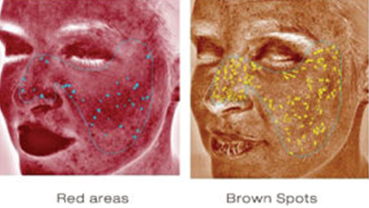 Red Areas and Brown Spots - Skin Deeper Image