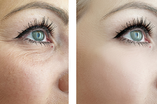 A woman before and after a non-surgical facelift for wrinkle treatment