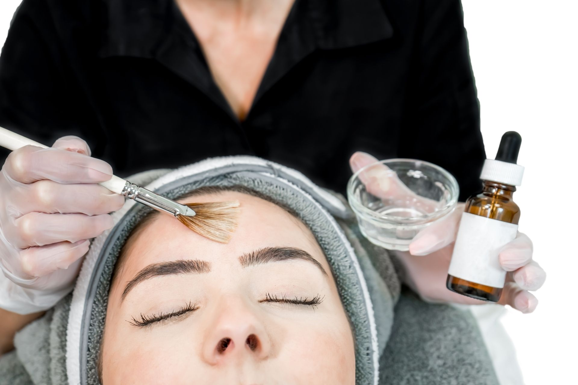 A person getting a chemical peel